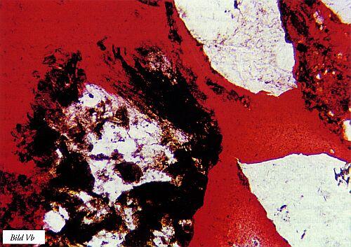 Bild V. Exempel på omvandlingar a) sekundära mineral som bildats bl a utefter kornfogar i granit och försvagat denna samt b) fina korn från stenmjöl som gjutits in i rödfärgad härdplast. Kornet tv innehåller lermineral (omvandlingsprodukt) och sönderfaller. Förstoringar ca 50 resp 100 gånger. Tunnslip. Bild b) i vanligt icke polariserat ljus.